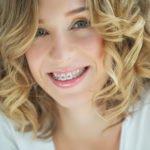 Die eigene Zahnspange reinigen – wie die optimale Hygiene wahren?